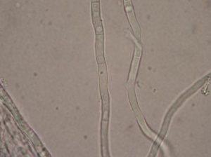 Ife fungine settate (Urine, cane)